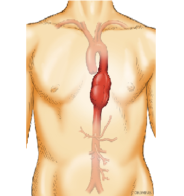 症状 腹部 大動脈 瘤 初期